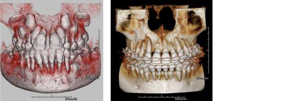 歯の生えてくる方向の診断